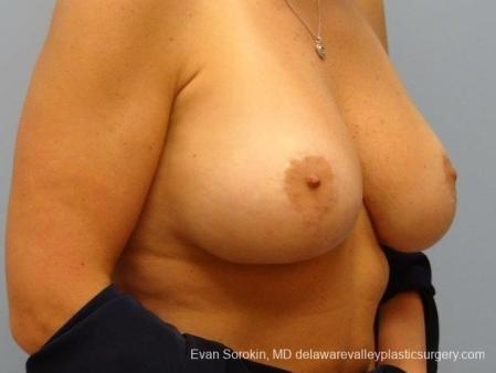 Philadelphia Breast Lift and Augmentation 8696 -  After Image 2