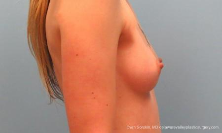 Philadelphia Breast Augmentation 9381 - Before Image 3