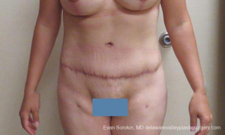 Philadelphia Abdominoplasty 10122 -  After Image 1