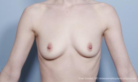 Philadelphia Breast Augmentation 8781 - Before Image 1