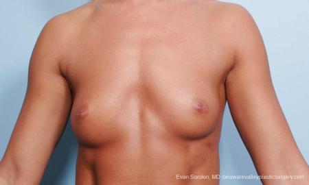 Philadelphia Breast Augmentation 9299 - Before Image 1