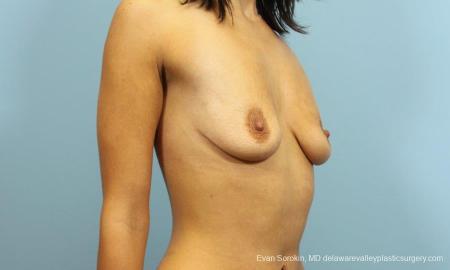 Philadelphia Breast Augmentation 9205 - Before Image 2