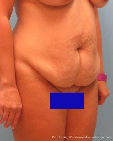 Philadelphia Abdominoplasty 9267 - Before Image 2