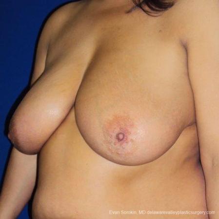 Philadelphia Breast Reduction 9470 - Before Image 2