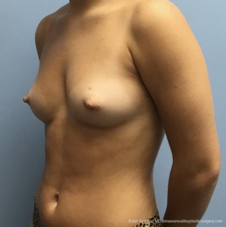 Breast Augmentation: Patient 165 - Before and After Image 4