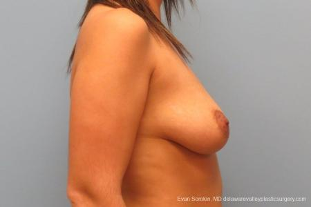Philadelphia Breast Lift and Augmentation 8688 - Before Image 4