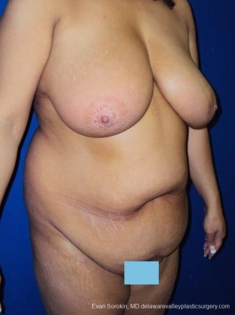 Philadelphia Mommy Makeover 8699 - Before Image 2