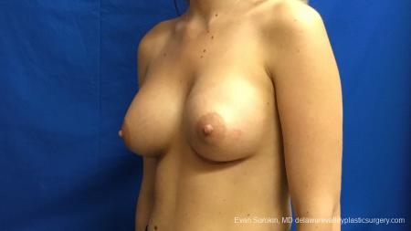 Philadelphia Breast Augmentation 12540 -  After Image 3