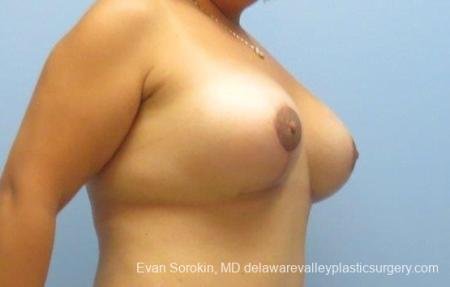 Philadelphia Breast Lift and Augmentation 8677 -  After 2