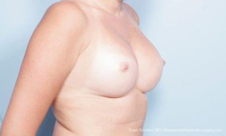 Philadelphia Breast Augmentation 9301 -  After Image 2