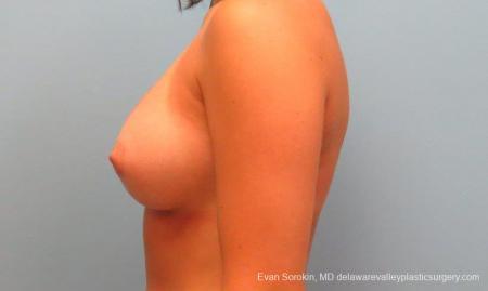 Philadelphia Breast Augmentation 9386 -  After Image 5
