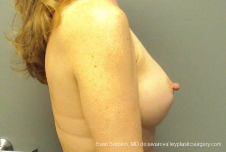 Philadelphia Breast Augmentation 8765 -  After Image 4