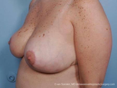 Philadelphia Breast Reduction 8703 -  After Image 3