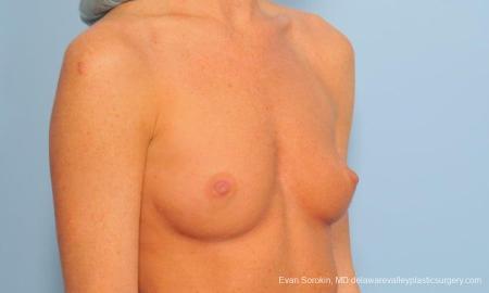 Philadelphia Breast Augmentation 9179 - Before Image 2