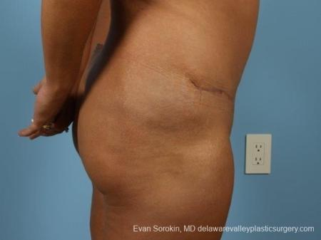 Philadelphia Abdominoplasty 8700 -  After Image 4