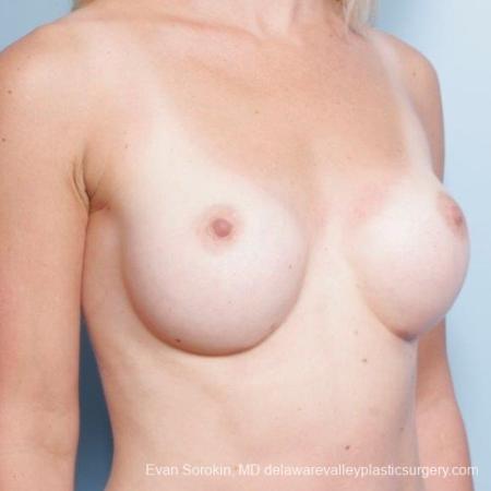 Philadelphia Breast Augmentation 8652 - Before Image 2