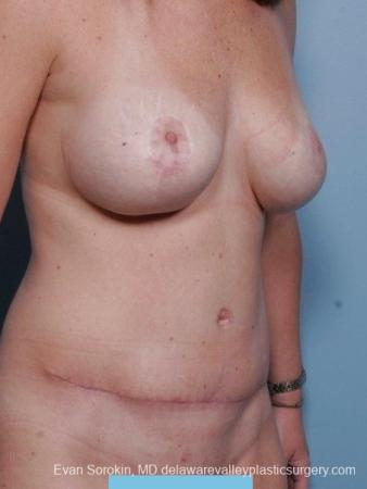 Philadelphia Mommy Makeover 8674 -  After Image 2