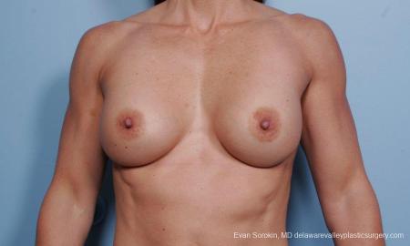 Philadelphia Breast Augmentation 9455 - Before Image 1