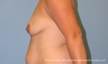 Philadelphia Breast Lift and Augmentation 10123 - Before and After Image 5