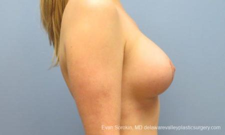 Philadelphia Breast Lift and Augmentation 10116 -  After Image 3
