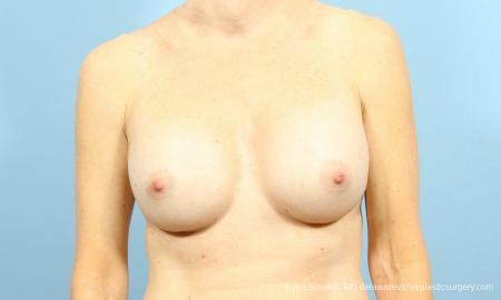 Philadelphia Breast Augmentation 9456 - Before Image 1