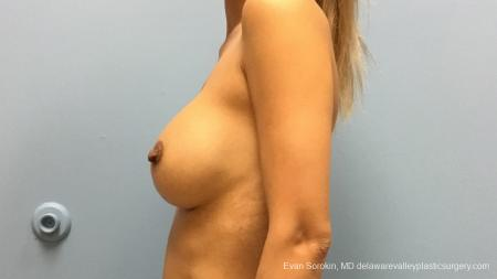 Philadelphia Breast Augmentation 13178 - Before and After Image 5