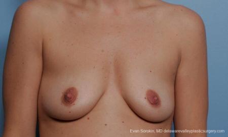 Philadelphia Breast Augmentation 9360 - Before Image 1