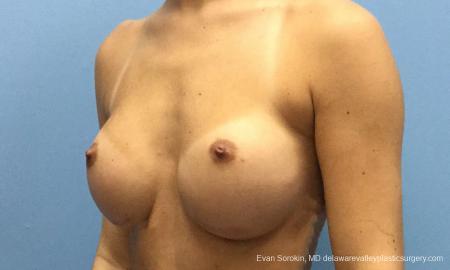 Philadelphia Breast Augmentation 10816 - Before Image 4