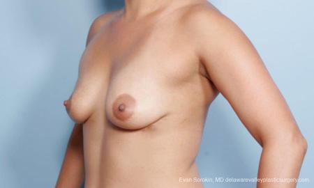 Philadelphia Breast Augmentation 9297 - Before Image 4
