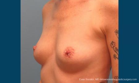 Philadelphia Breast Augmentation 9371 - Before Image 4
