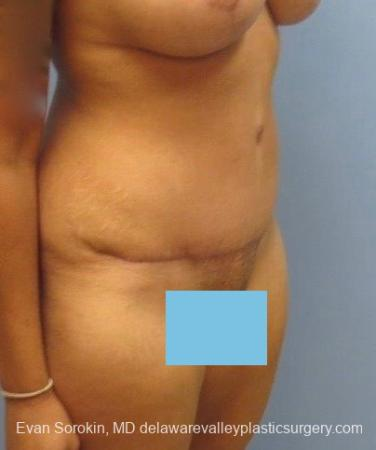 Philadelphia Abdominoplasty 8825 -  After Image 2