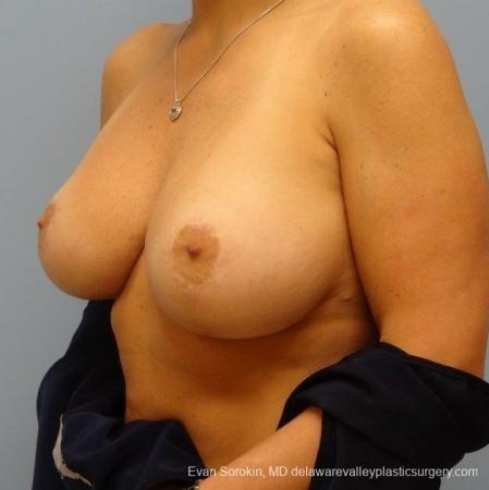 Philadelphia Breast Augmentation 8695 -  After Image 3