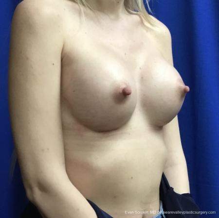 Breast Augmentation: Patient 166 - After Image 2