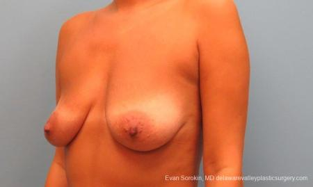 Philadelphia Breast Lift and Augmentation 10247 - Before and After Image 4