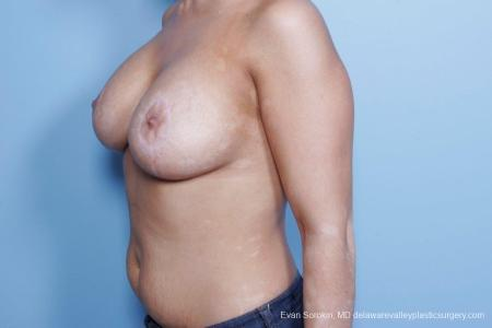 Philadelphia Breast Lift and Augmentation 8688 -  After Image 3
