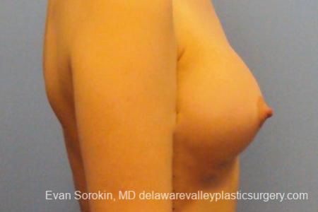 Philadelphia Breast Augmentation 10113 -  After Image 3