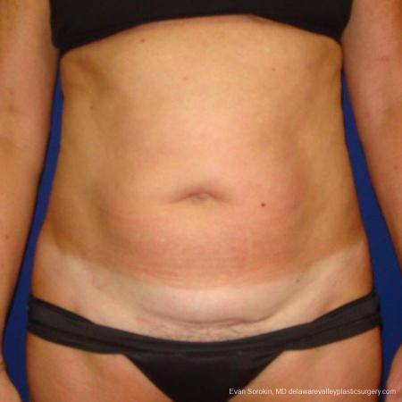 Philadelphia Liposuction 9488 - Before Image
