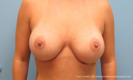 Philadelphia Breast Augmentation 9388 -  After Image 1