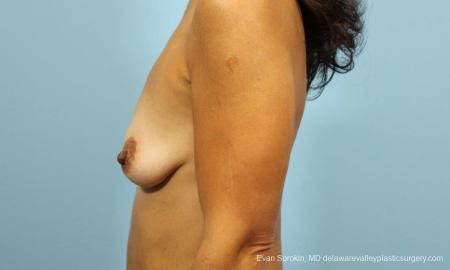 Philadelphia Breast Augmentation 9422 - Before and After Image 5