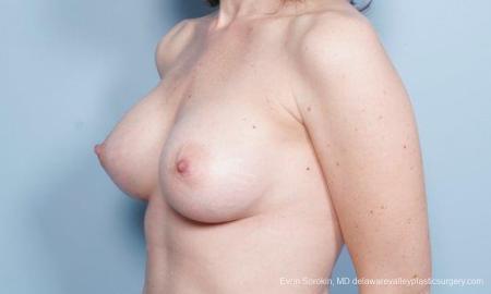 Philadelphia Breast Augmentation 9302 -  After Image 4
