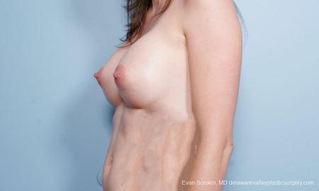 Philadelphia Breast Augmentation 9175 -  After Image 4
