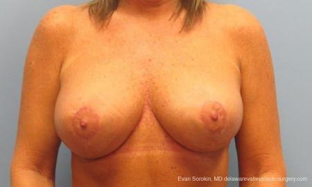 Philadelphia Breast Lift and Augmentation 9398 - After Image