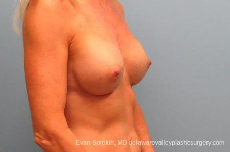 Philadelphia Breast Augmentation 9415 -  After Image 2