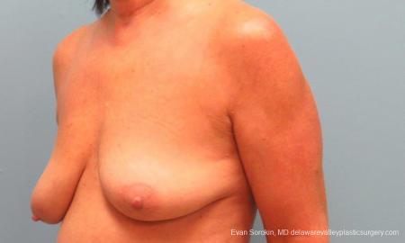 Philadelphia Breast Lift and Augmentation 9598 - Before Image 4