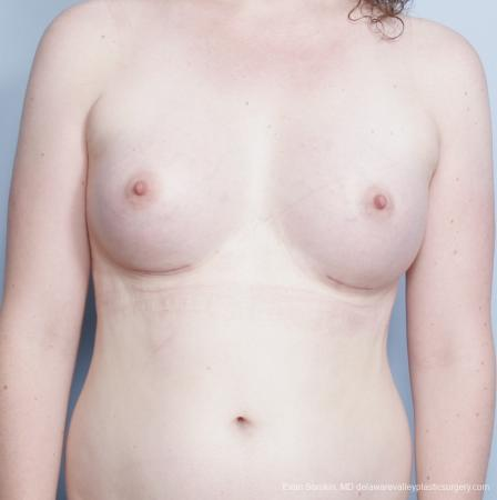 Philadelphia Top Surgery Male to Female 8642 - After Image