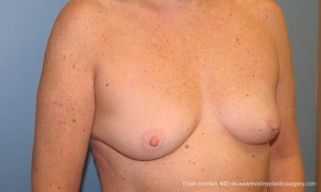 Philadelphia Breast Augmentation 9600 - Before Image 2