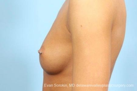 Philadelphia Breast Augmentation 8769 - Before and After Image 5