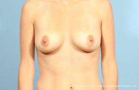 Philadelphia Breast Augmentation 9105 - Before Image 1