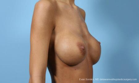 Philadelphia Breast Augmentation 9445 - Before Image 4
