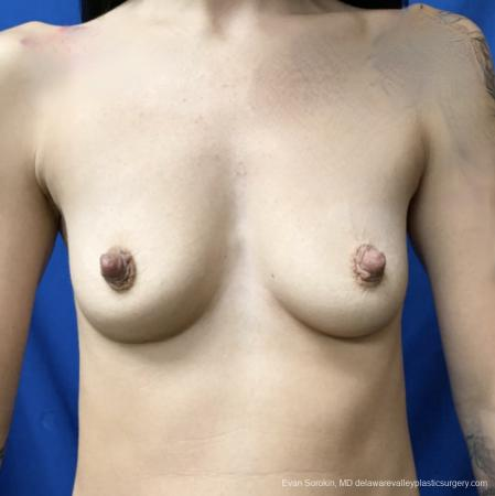 Breast Augmentation: Patient 161 - Before Image 1